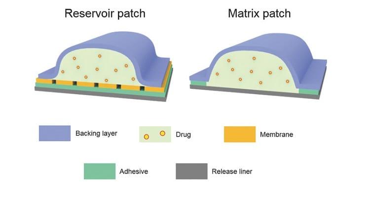 matrix vs reservoir patch